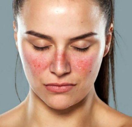 Ciri-Ciri Penyakit Lupus Dari Lupus Foundation Of Minnesota