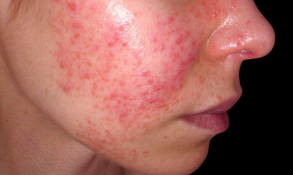 Penyakit Lupus Menurut Lupus Foundation of Minnesota