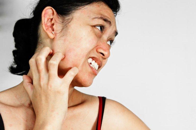 Apakah Penyakit Lupus Tak Dapat Disembuhkan Bersama Lupus Foundation