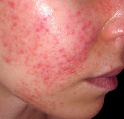 Mengetahui Fakta Tentang Penyakit Lupus Foundation of Minnesota