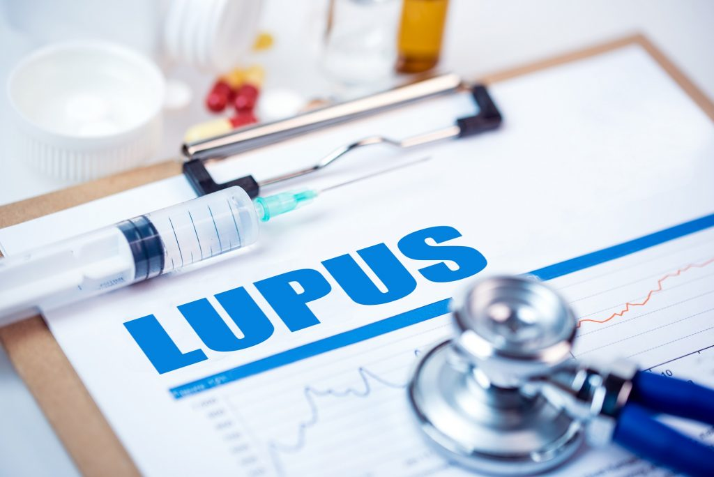 Memahami Genetika Lupus Foundation of Minnesota