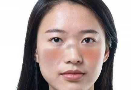 Penyakit Lupus Yang Sering Menyerang Perempuan Asia Serta Hispanik Menurut Lupus Foundation Of America