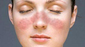 Fakta Fakta Tentang Penyakit Lupus Bersama Lupus Foundation Of Minnesota
